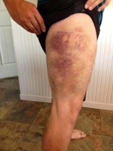 bruise leg